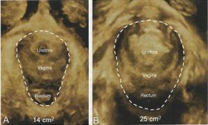 pelvic separation