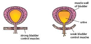 bladder leakage