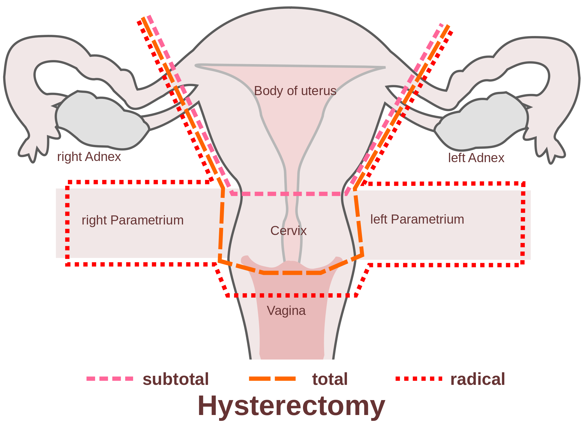 2000px-Scheme_hysterectomy-en.svg.png
