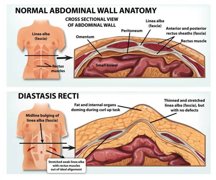 diastasis-recti-copyright